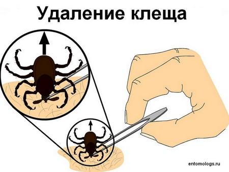 Первая помощь при укусе клеща