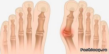 Косточки около больших пальцев на ногах