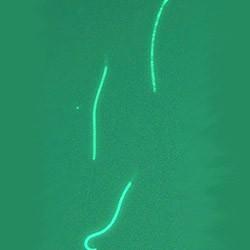 pochemu-sperma-zelenogo-ottenka